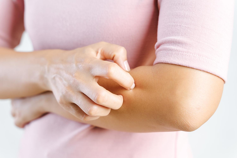 aloe vera eczema